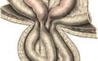 Ущемление пупочной грыжи у новорожденных: причины и симптомы, чем опасно заболевание, хирургическое вмешательство и реабилитация, профилактика