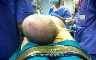 Грыжа паховая у женщин: операция и удаление новообразования
