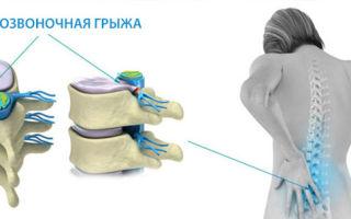 Удаление межпозвонковой грыжи без операции: безоперационное лечение