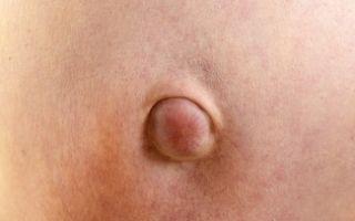 Удаление пупочной грыжи, операция на пупке и грыжесечение