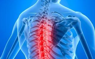 Грыжа грудного отдела позвоночника: что это и как лечить?