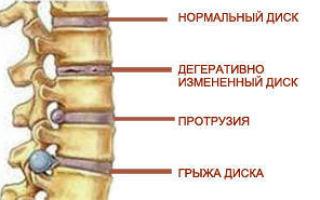 Грыжа диска L4-L5: симптомы и способы лечения, факторы риска