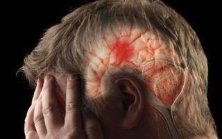 Как лечить грыжу Шморля в шейном отделе позвоночника: причины болезни и способы терапии