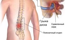 Влияние грыжи позвоночника на потенцию: связь между заболеваниями, последствия эректильной дисфункции, профилактика патологии