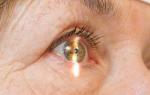 Раствор и глазные капли атропин: инструкция по применению, показания, цена и отзывы