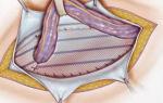 Удаление грыжи: герниопластика и грыжесечение, операция