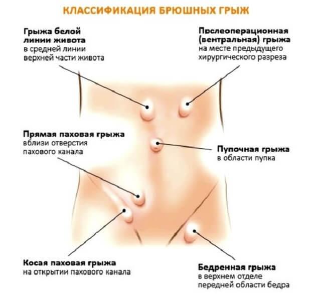 Паховая грыжа: симптомы у женщин, лечение