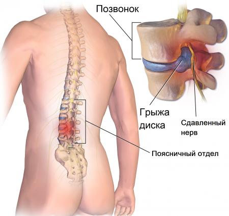 Влияние грыжи позвоночника на потенцию: связь между грыжей и потенцией, последствия эректильной дисфункции, профилактика заболевания