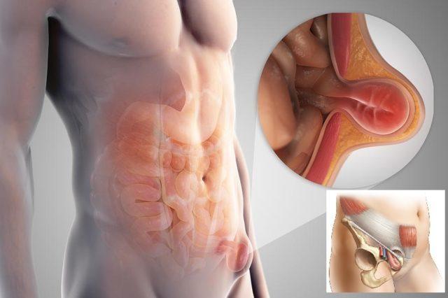Грыжа у женщин и мужчин: симптомы различных видов грыж у взрослых