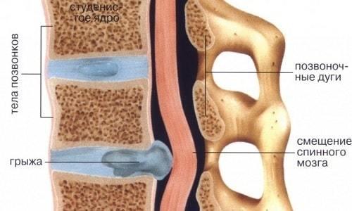 Последствия удаления грыжи поясничного отдела позвоночника: возможные осложнения, лечение после операции (консервативное, повторная операция), отзывы