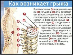 Остеопатия при грыже позвоночника: причины, симптомы, принципы методики, основные методы и приемы, противопоказания, отзывы