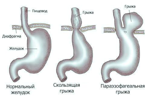 Грыжа пищеводного отверстия диафрагмы: лечение без операции