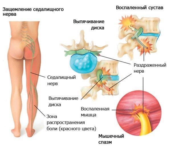 Мануальная терапия при грыже поясничного отдела