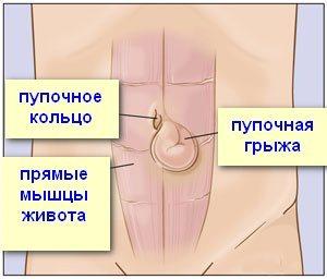Пупочная грыжа у детей и подростков: симптомы и лечение