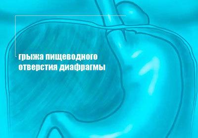 Грыжа диафрагмальная: виды, симптомы, лечение