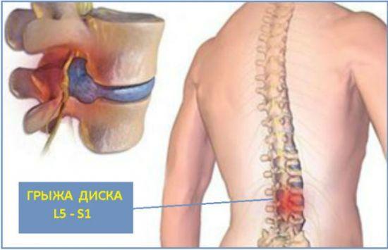 Дорзальная (дорсальная) грыжа: симптомы, лечение, последствия