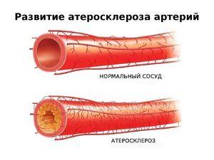 МИДОКАЛМ или МЕКСИДОЛ: что лучше и в чем разница (отличие составов, отзывы врачей)