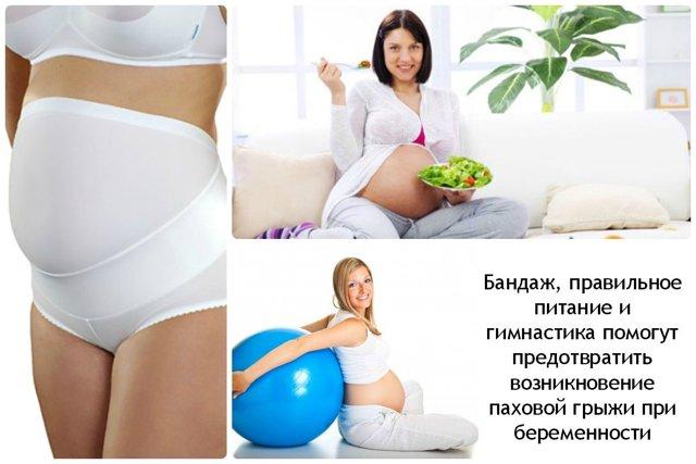 Паховая грыжа при беременности