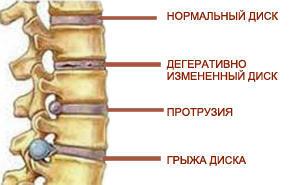 Грыжа диска l4 l5: симптомы, лечение
