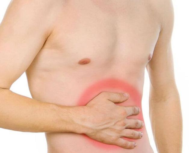 Лечение пупочной грыжи без операции: вправление пупка