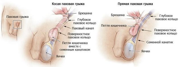 Мошоночная грыжа: операция