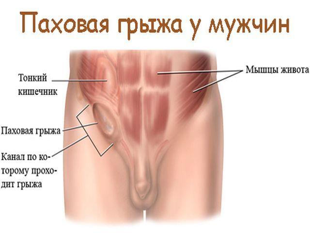Паховая грыжа: симптомы, методы лечения