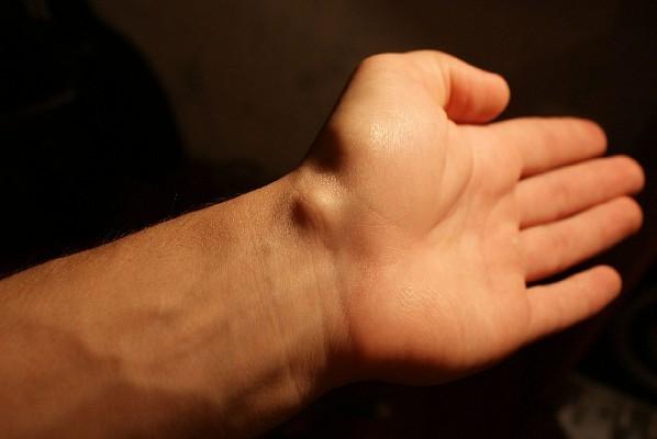 Шишка на запястье без боли - это грыжа?