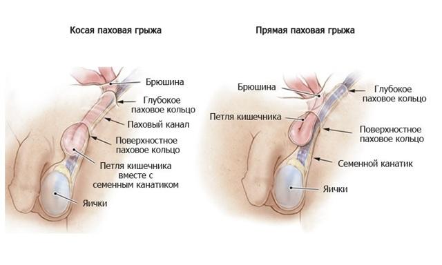Бандаж для паховой грыжи (мужской): когда применяется, как выбрать, как носить.