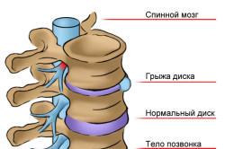 Чем опасен диагноз срединная грыжа?
