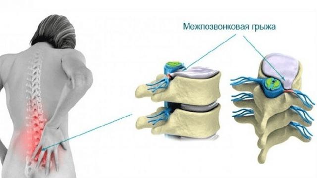 Эндоскопическое удаление грыжи позвоночника: преимущества метода, противопоказания, подготовка, ход операции, реабилитация, отзывы