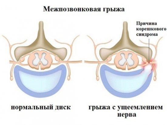 Грыжа поясничного отдела позвоночника: признаки и лечение