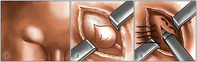 Удаление грыжи (герниопластика, грыжесечение, операция)