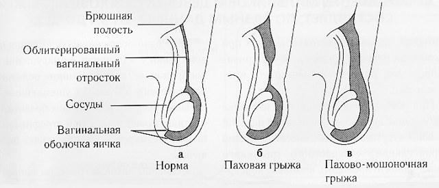 Пахово-мошоночная грыжа у мужчин