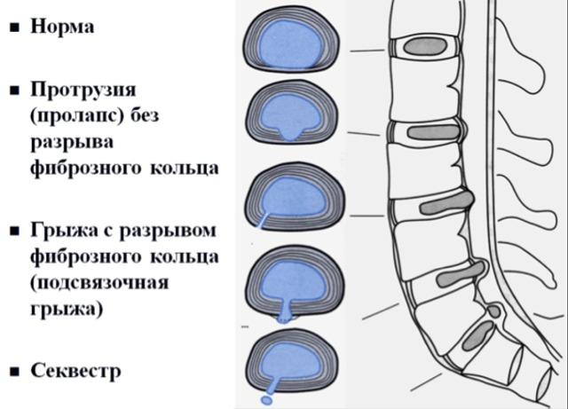 Хондропротекторные препараты при грыже позвоночника: принцип действия, классификация, форма выпуска, особенности применения, противопоказания, отзывы