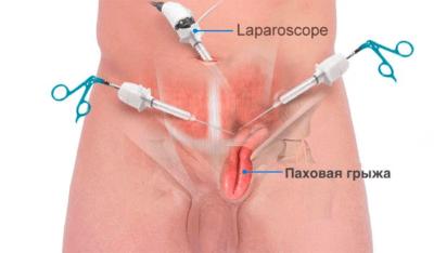 Лапароскопия паховой грыжи (видео, отзывы)