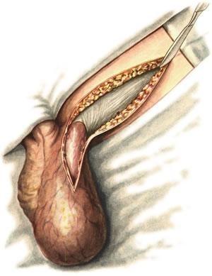 Ущемление (защемление) паховой грыжи: признаки, симптомы, осложнения