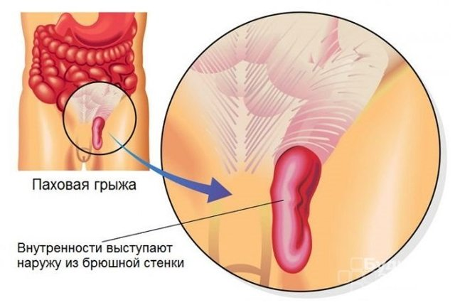 Паховая грыжа: симптомы у мужчин, лечение