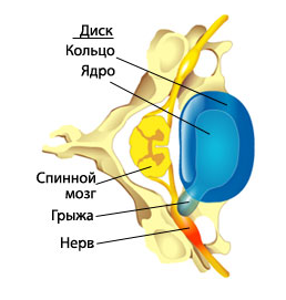 Лечение грыжи позвоночника: медикаментозное, хирургическое, консервативное, народное, вытяжение позвоночника, пластырь, блокада, профилактика, отзывы
