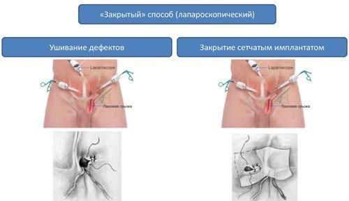 Брюшная грыжа: признаки и лечение