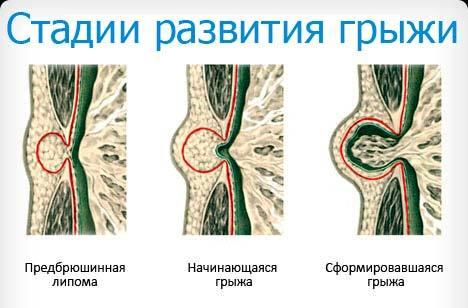 Чем опасна эпигастральная грыжа?
