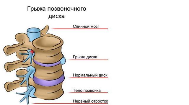 Грыжа грудного отдела позвоночника: симптомы и лечение