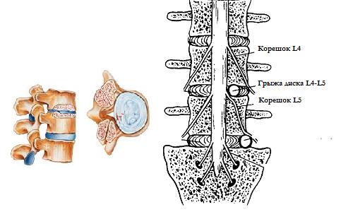 Фораминальная грыжа диска l4 l5: поясничная грыжа