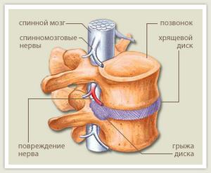 Внутренняя грыжа брюшной полости: причины, симптомы