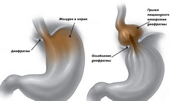 Почему появляется параэзофагеальная грыжа?