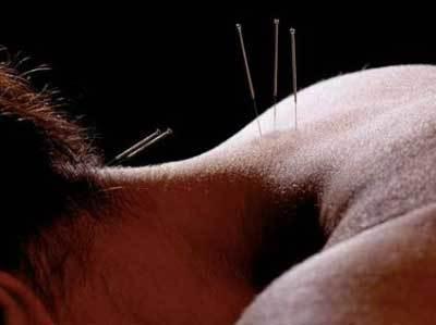 Когда нужна операция при грыже шейного отдела позвоночника?