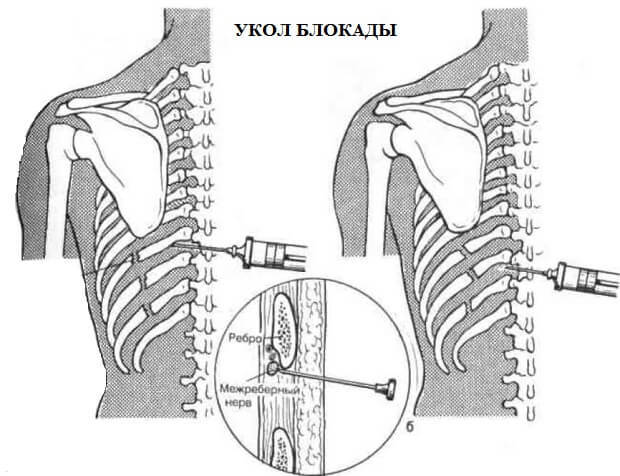 Блокада позвоночника: обезболивание инъекцией