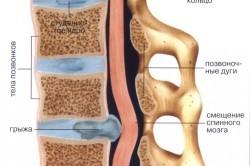 Реабилитация после операции по удалению межпозвонковой грыжи: правила восстановления