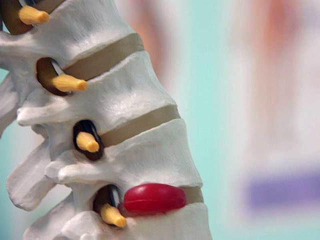 Лечение межпозвоночной грыжи пиявками, гирудотерапия