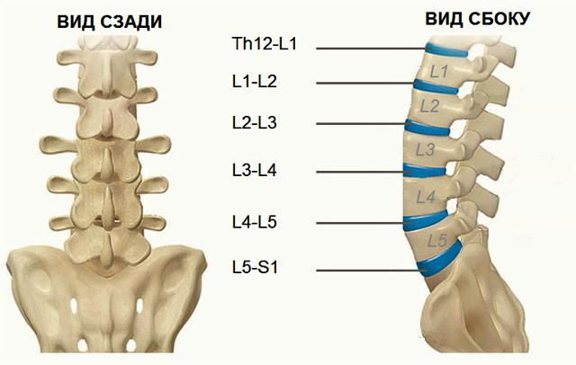 Грыжа спины: симптомы, признаки, виды, лечение (фото)
