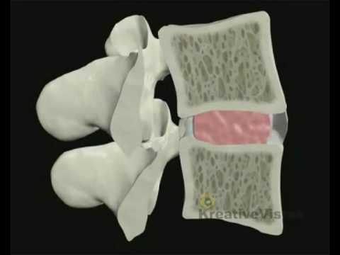 Медианная грыжа диска (l4 l5, l5 s1 и др.): возникновение, лечение
